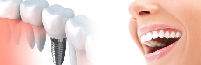entretien implants dentaires